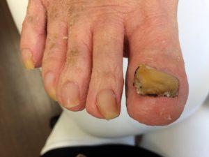 爪甲鉤彎症の対策?